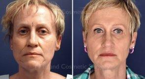 facial-fat-grafting-18194a-inlandcs