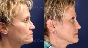facial-fat-grafting-18194c-inlandcs