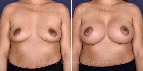 breast-augmentation-18413a-inlandcs