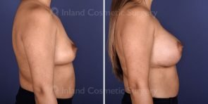 breast-augmentation-18413c-inlandcs
