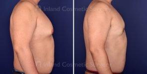 gynecomastia-18407c-inlandcs
