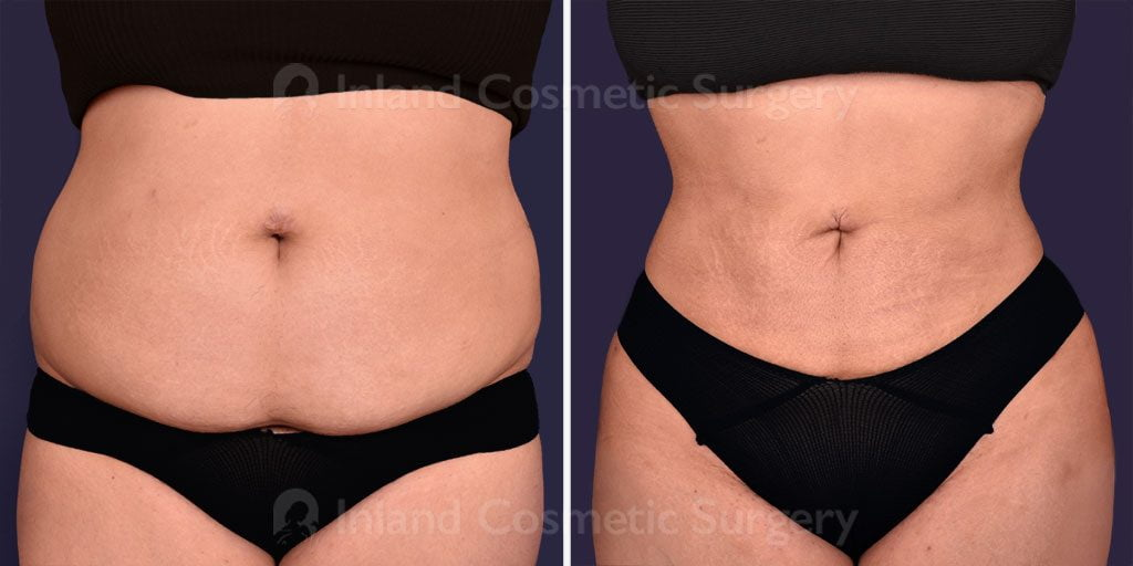 Liposuction and Fat Transfer