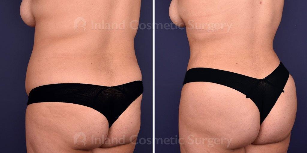 liposuction-vaser-tickle-fat-transfer-18392d-inlandcs