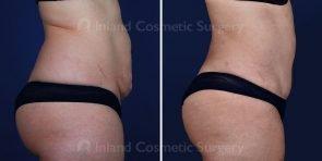 tummy-tuck-liposuction-18421c-inlandcs