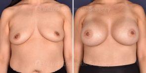 breast-augmentation-18489a-inlandcs
