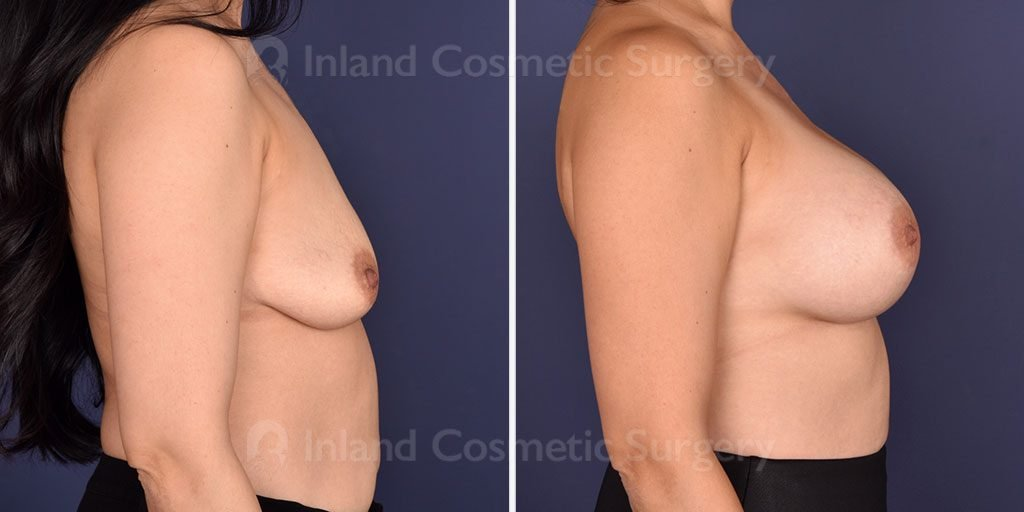 breast-augmentation-18489c-inlandcs