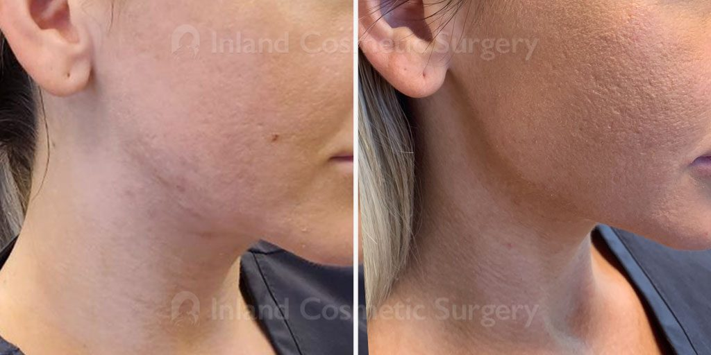 injectable-fillers-jawline-18780c-inlandcs