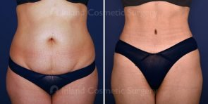 Tummy Tuck with Liposuction