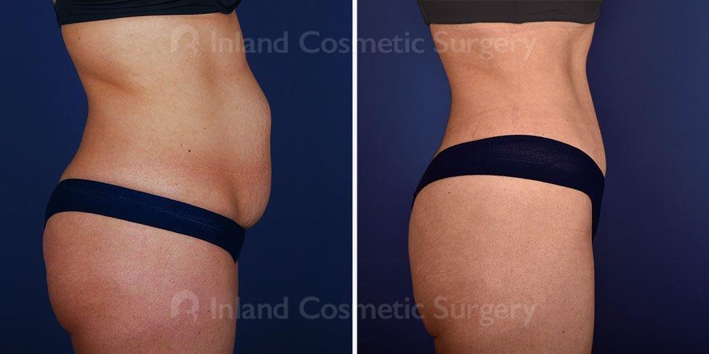 tummy-tuck-liposuction-17891c-inlandcs