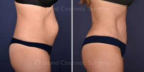 tummy-tuck-tickle-liposuction-18662c-inlandcs