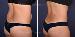 tummy-tuck-tickle-liposuction-18662d-inlandcs