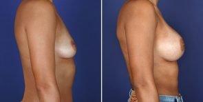 breast-augmentation-19040-c-inlandcs