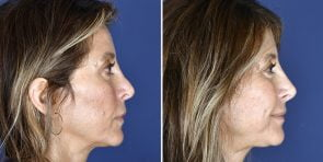 non-surgical-rhinoplasty-18963c-inlandcosmetic