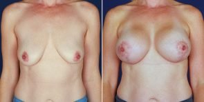 breast-augmentation-14096a-haiavy