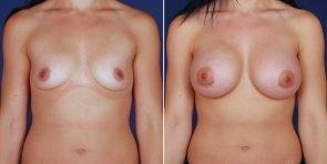 breast-augmentation-14336a-haiavy