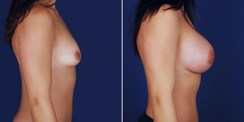 breast-augmentation-14336c-haiavy