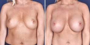 breast-augmentation-19509a-inlandcs
