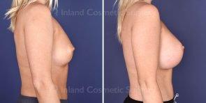 breast-augmentation-19509c-inlandcs