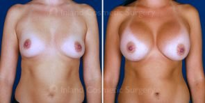 breast-augmentation-tuba-19539a-inlandcs