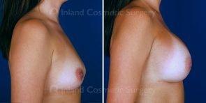 breast-augmentation-tuba-19539c-inlandcs