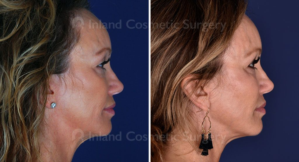 eyelid-lift-lower-CO2-laser-fat-transfer-19388c-inlandcs