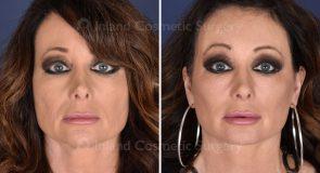 face-neck-brow-lift-fattrans-co2laser-eyes-19481a-inlandcs