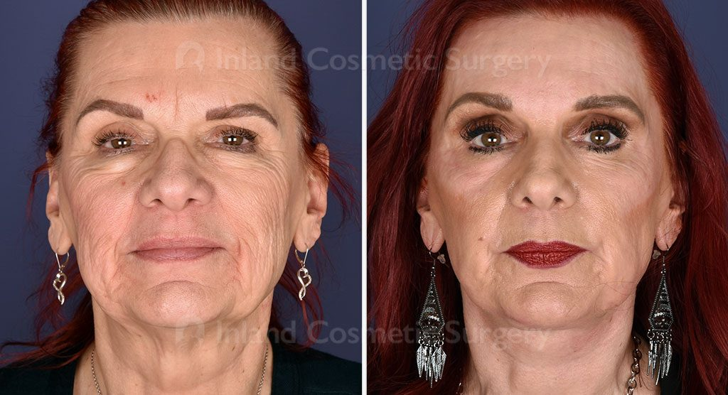 face-neck-brow-lift-lower-bleph-co2-laser-19466a-inlandcs