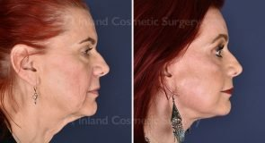 face-neck-brow-lift-lower-bleph-co2-laser-19466c-inlandcs