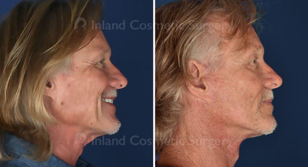 face-neck-brow-lift-tca-peel-19393c-inlandcs