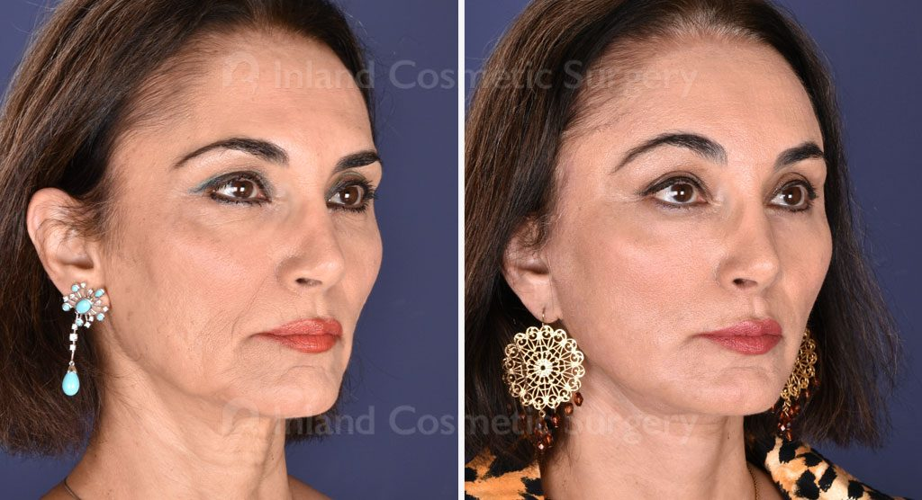face-neck-brow-upper-bleph-fat-transfer-co2-laser-19310b-inlandcs