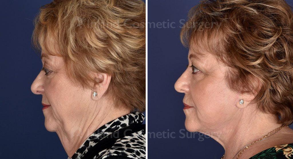 face-neck-browlift-fat-trans-tcapeel-juv-lips-19476c-inlandcs