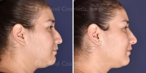 non-surgical-rhinoplasty-19522c-inlandcosmetic