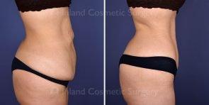 tummy-tuck-tickle-liposuction-19612a-inlandcs