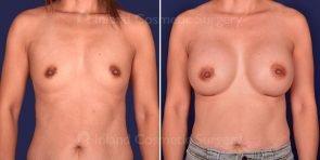 breast-augmentation-19705a-inlandcs