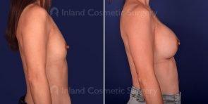 breast-augmentation-19705c-inlandcs