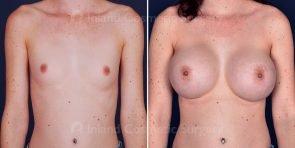 breast-augmentation-19739a-inlandcs
