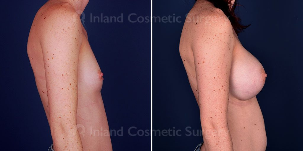 breast-augmentation-19739c-inlandcs