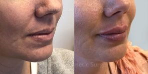 lip-augmentation-restylane-19731b-inlandcs