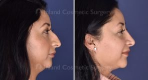 rhinoplasty-submental-liposuction-19865c-inlandcs