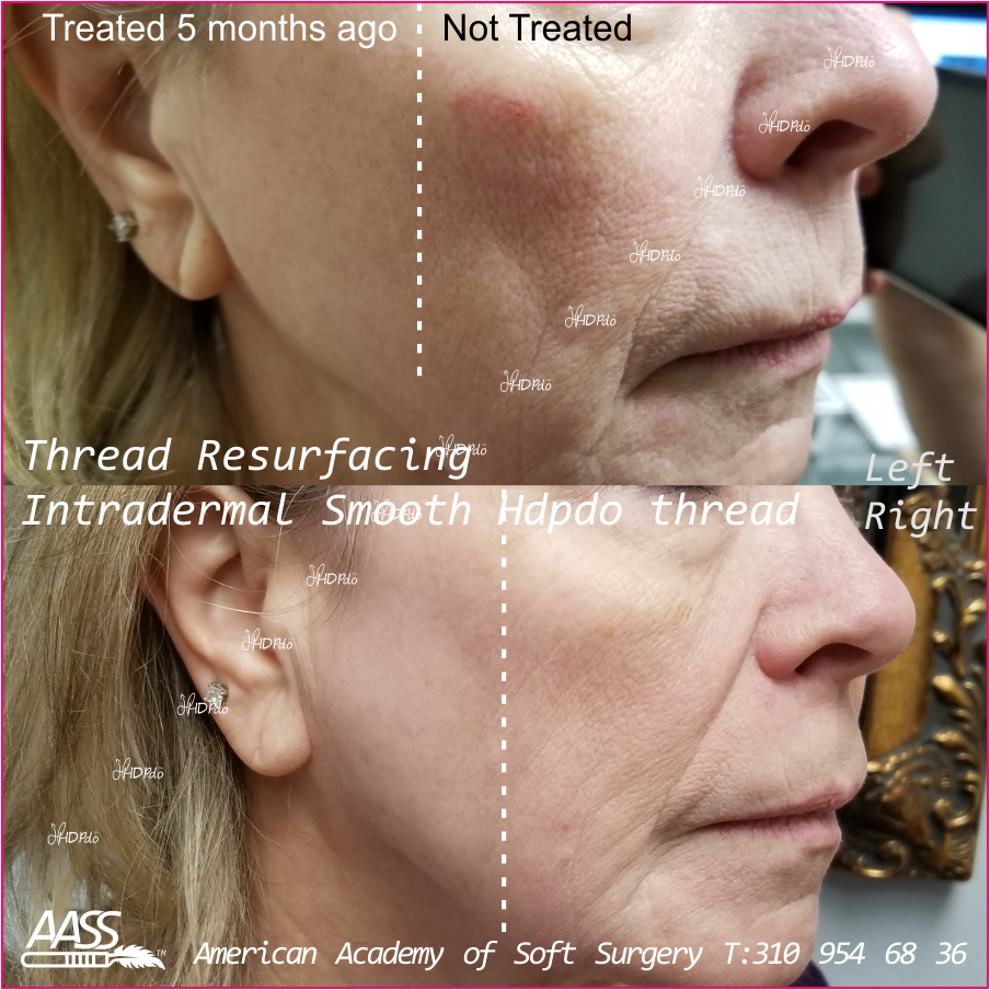 HDPDO Thread Lift Before and After