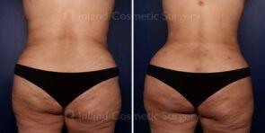 Liposuction and Brazilian Buttock Lift