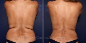 Liposuction and Renuvion