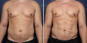 Male Breast Reduction with Liposuction