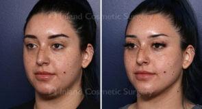 Submental Vaser Liposuction