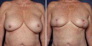 Breast Augmentation Revision Patient