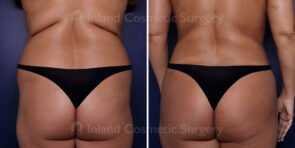 Liposuction and Fat Transfer to the Buttocks