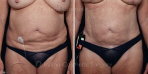 Liposuction with Renuvion