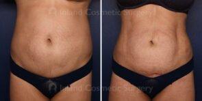 Mini Tummy Tuck with Liposuction